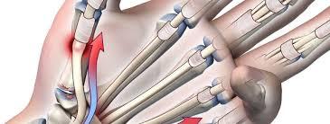 hand tendo